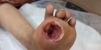 Diabetic-Foot-Ulcer