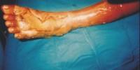 Massage Injury