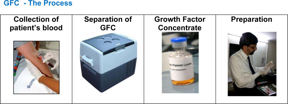 PRP-and-GFC-1