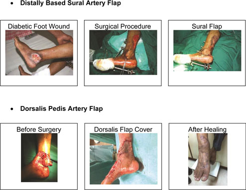 Surgical-Treatments-3